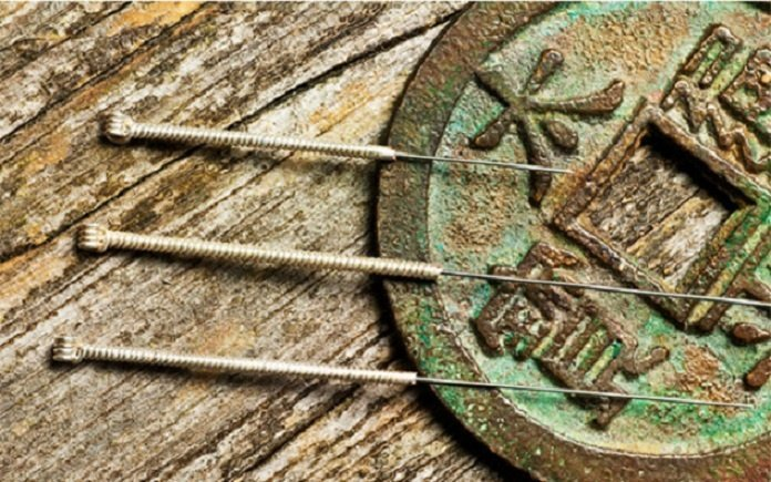 Acupuncture:  Ancient Needle Work as Pain Relief Treatment