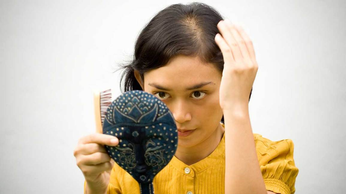 48 Percent Of Women Have Thinning Hair