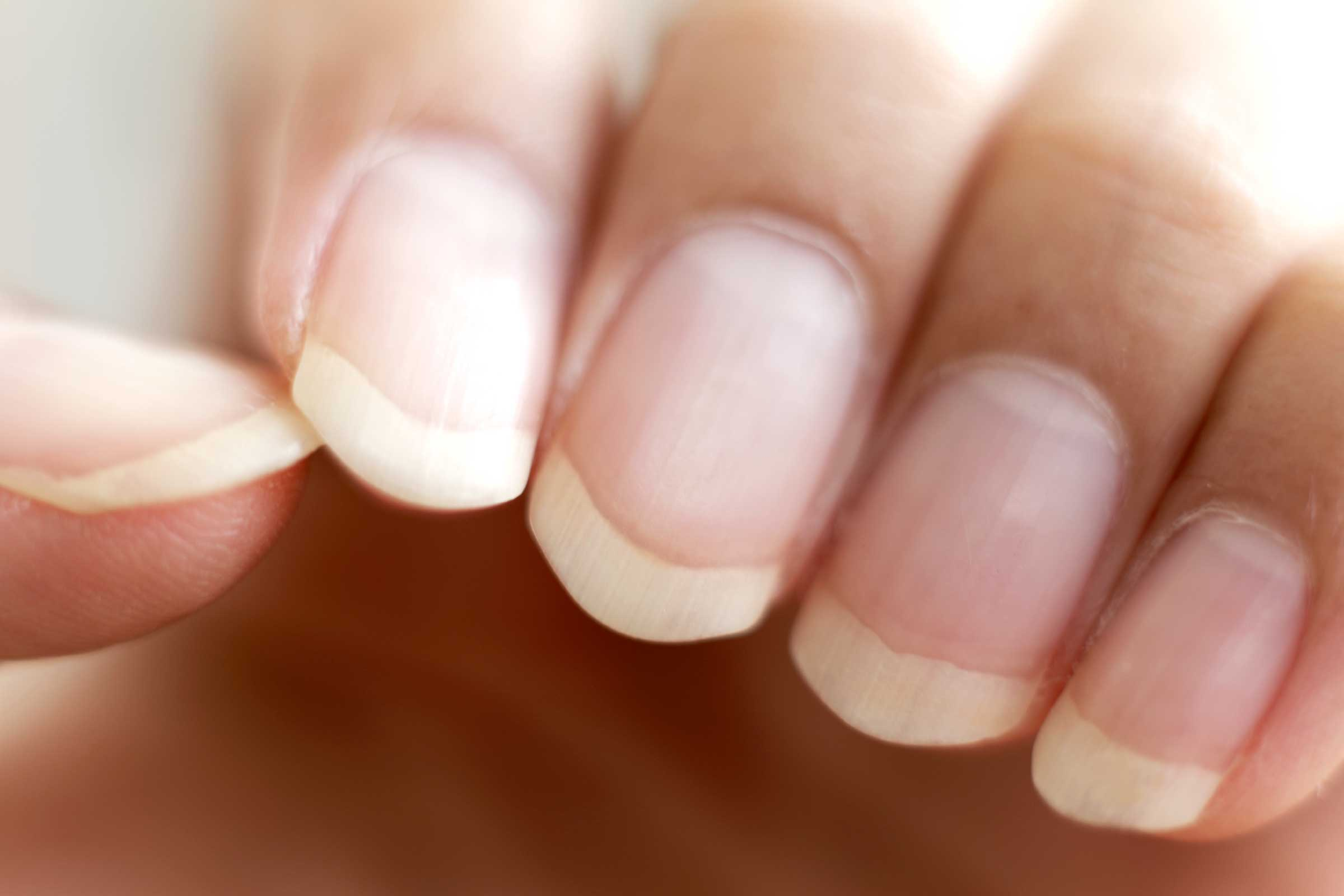 Nails in Health and Disease